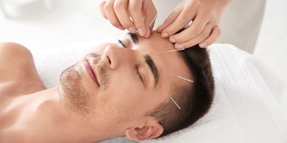 Um homem sendo tratado por acupuntura
